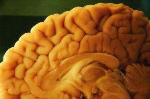Fem servir el 10% del cervell?