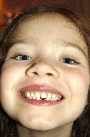 Les dents de llet contenen cèl·lules mare