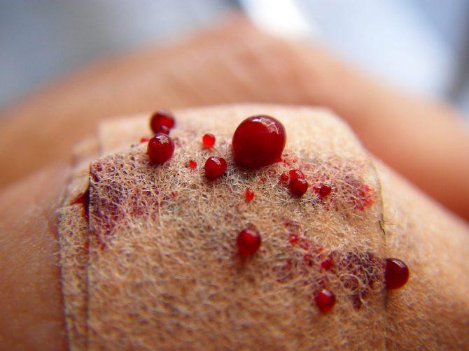 Per què la sang és vermella?